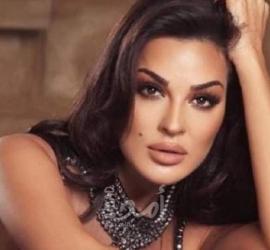 شاهد .. نادين نجيم تستعرض ندوب وجهها في اليوم العالمي للمرأة: ابقي قوية!