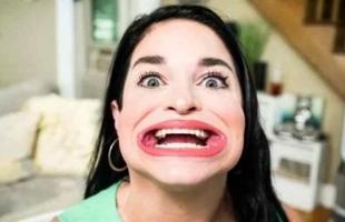 سيدة تحصل على لقب أكبر فم في العالم