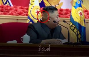 """""""ضمادة وكدمة غريبة"""" في رأس زعيم كوريا الشمالية تثير الشكوك حول صحته- فيديو"""